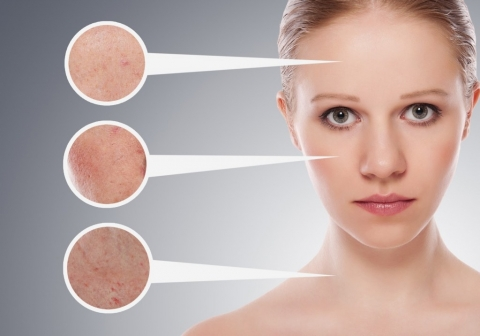 Fastest Ways Of Curing Skin Imperfections Picture