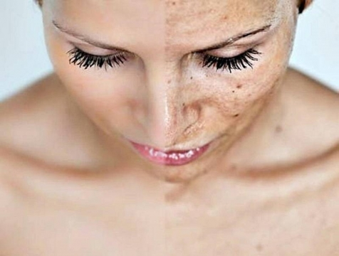 What-skin-problems-can-a-chemical-peel-help-with