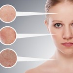 Fastest-Ways-Of-Curing-Skin-Imperfections-Picture